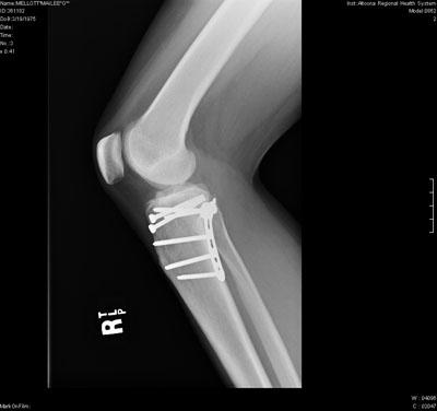 luther vandross: Tibial Plateau Fracture Surgery